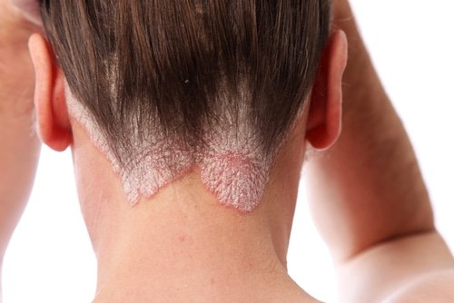 Ways to Ease Pain During a Psoriasis Flare 2