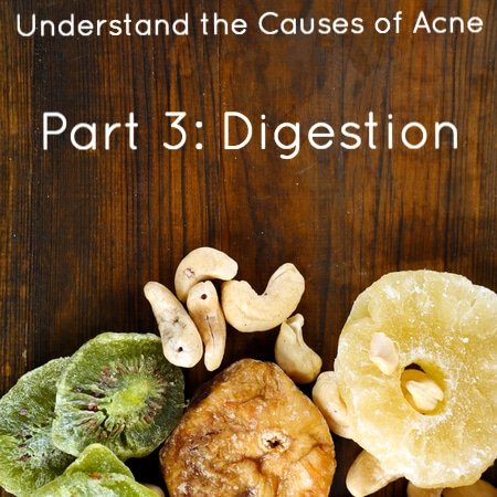 Digestion and Acne